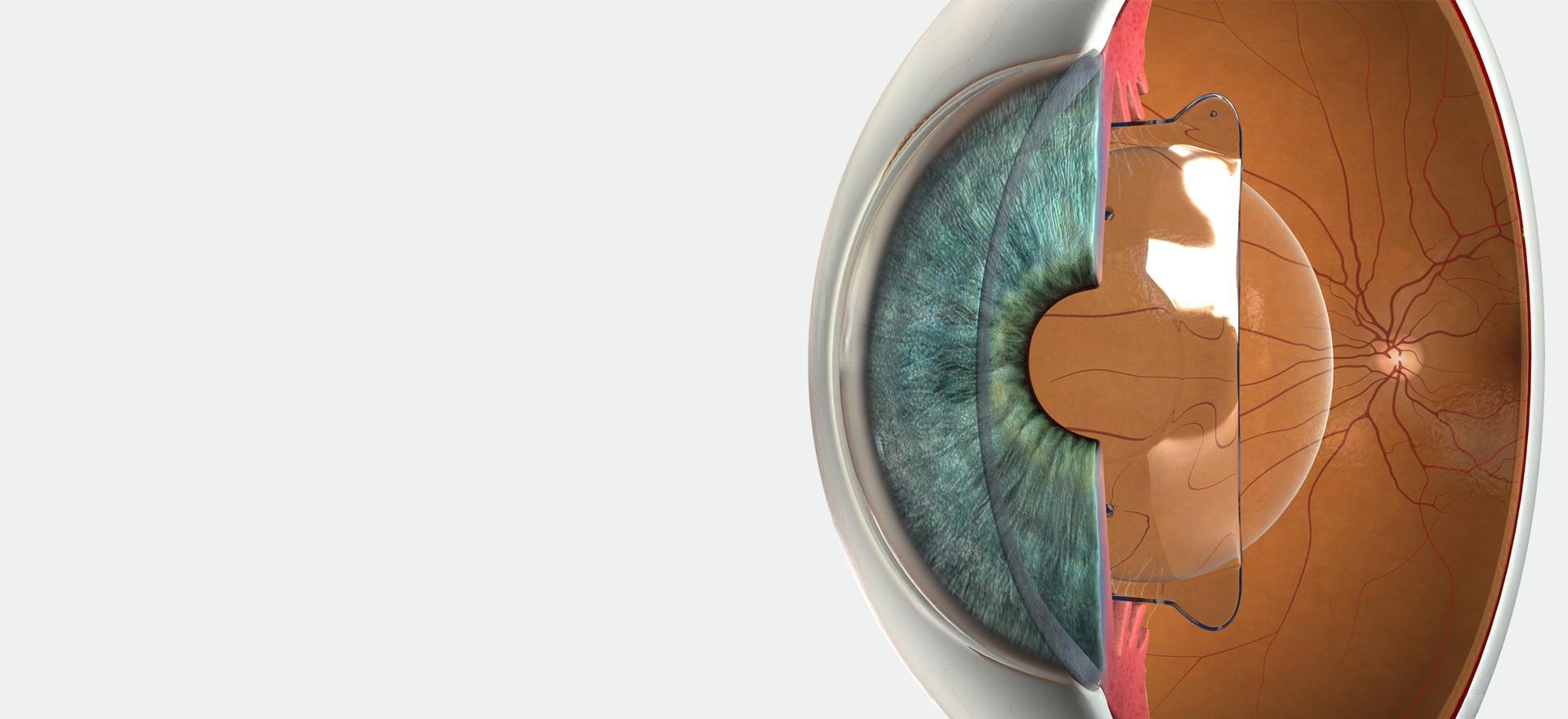 Zusatzlinse (PIOL) - Augenlaserzentrum VS-Villingen